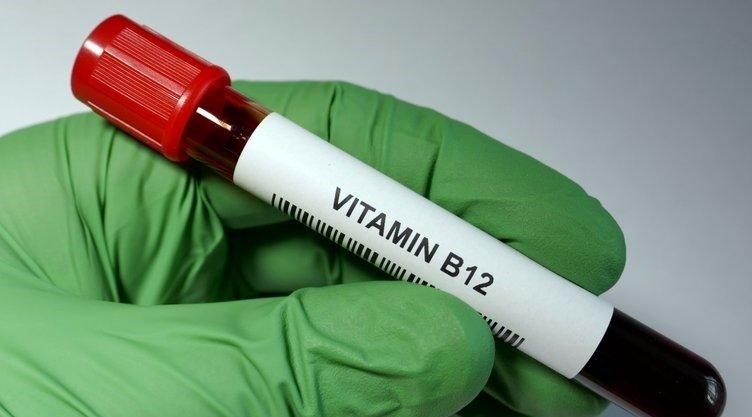 B12 vitamini eksikliği çeşitli rahatsızlıklara yol açıyor! B12 eksikliği belirtileri nelerdir?