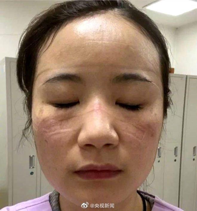 Çin'de koronavirüs hastalarının tedavi eden doktorların hali yürek burktu