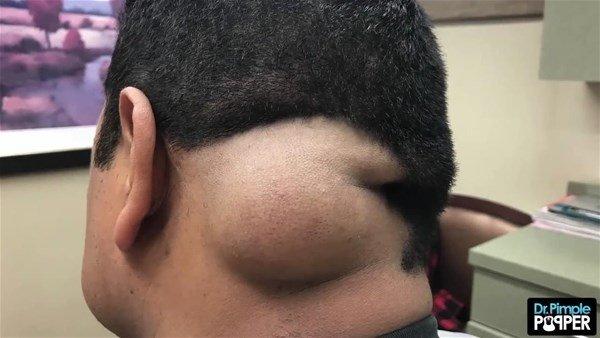 Baş ağrısı için doktora gitmişti! Kafasından çıkanlar şoke etti