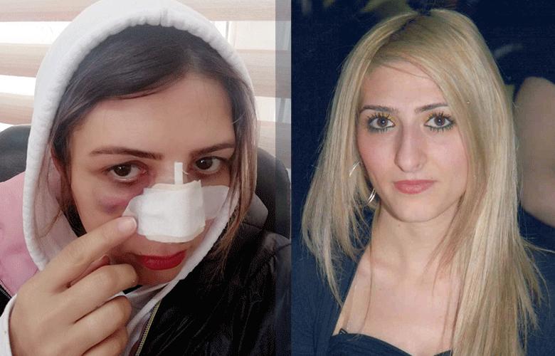 İzmir'de burun ameliyatı mahkemelik oldu