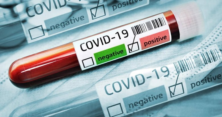 Koronavirüsün yeni bulaş yolu ortaya çıktı! Bu havalara dikkat