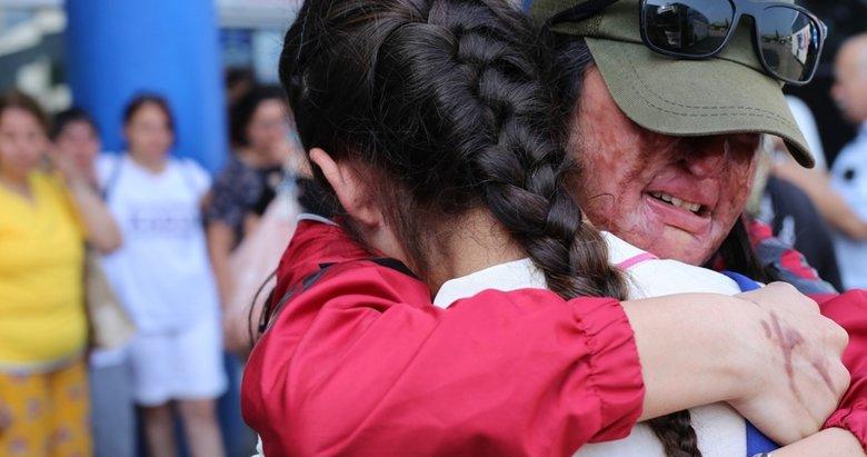 Kezzap saldırısına uğrayan Berfin Özek ameliyat olmak için Bodrum'a gitti