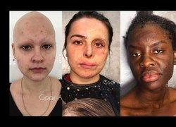 Kaza geçirmiş insanlar makyajla yeniden doğdu
