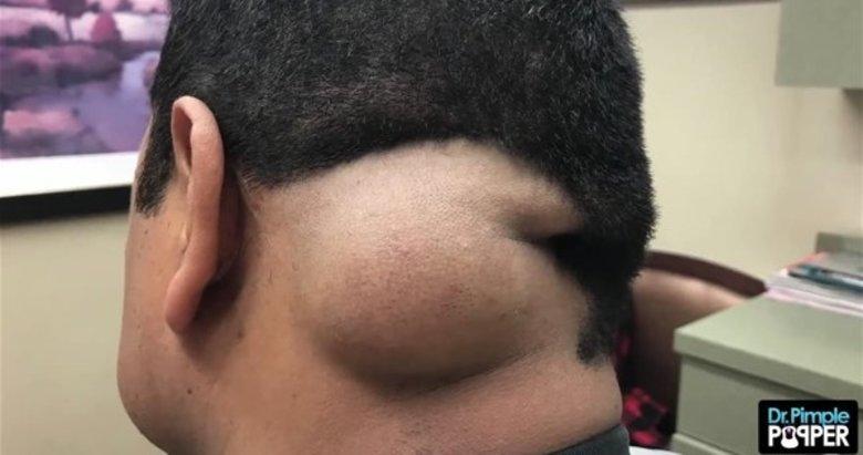 Baş ağrısı için doktora gitti! Kafasından çıkanlar şok etti!