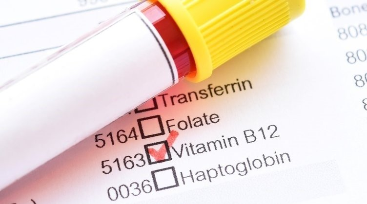B12 vitamini eksikliğinin belirtileri nelerdir?