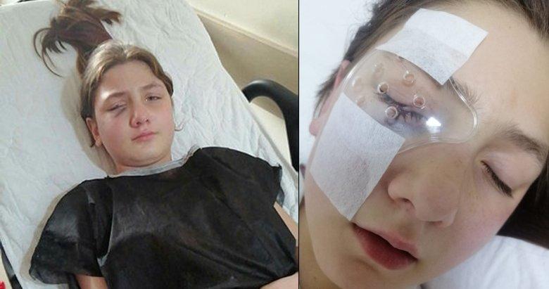Yastık savaşı yaparken kırılan avize, 9 yaşındaki kızın gözünü parçaladı