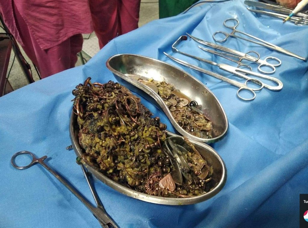 Manisa'da mide ağrısıyla gelen hastanın safra kesesinden çıkanlar şok etti