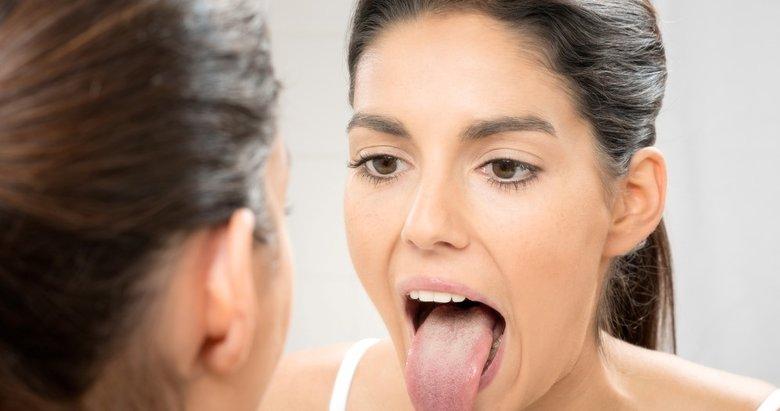 Dil temizliğinin önemi ve nasıl yapılması gerektiğini biliyor muydunuz? Dil hakkında hiç bilmediğiniz gerçekler...