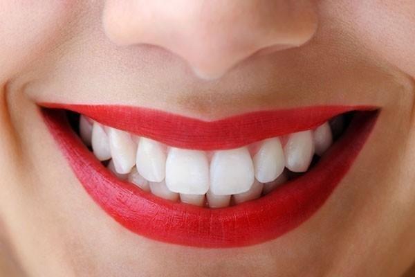 Bu yöntemle siz de bembeyaz dişlere sahip olabilirsiniz! İşte doğal yöntemlerle diş beyazlatma