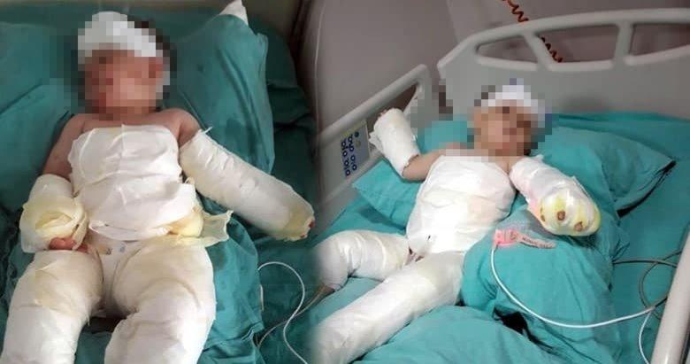 İzmir'de akılalmaz olay! Eşinin ve 1,5 yaşındaki oğlunun üzerine kolonya dökerek yaktı