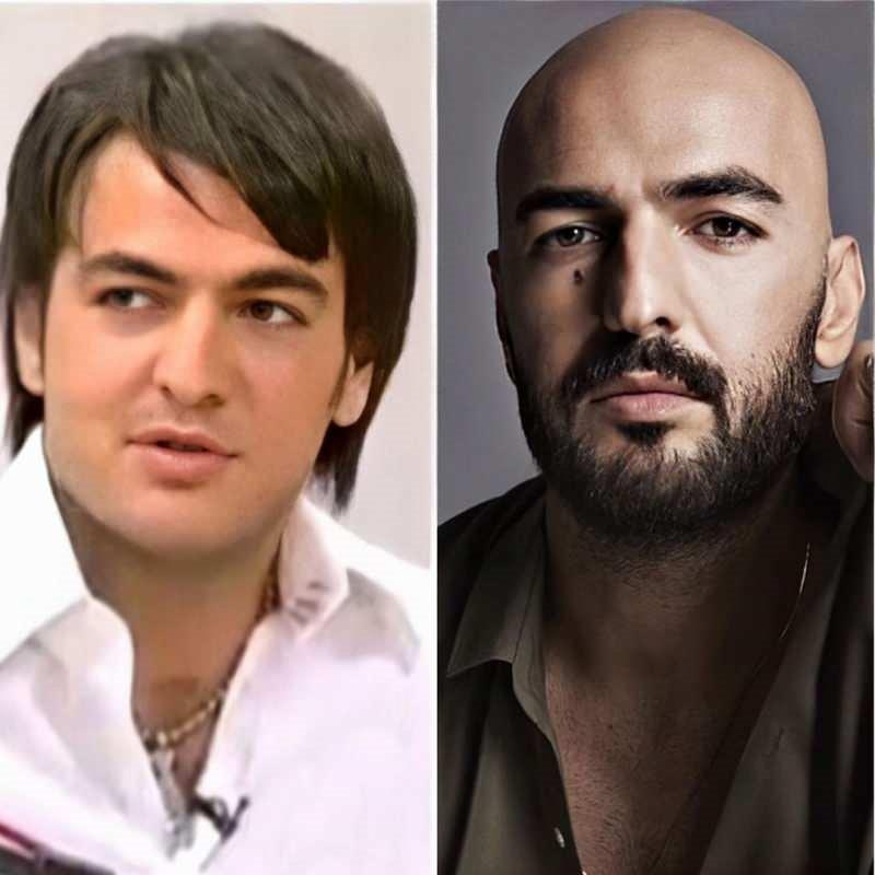 Hekimoğlu'nun Zeynep'i Damla Colbay değişimi ile şok etti
