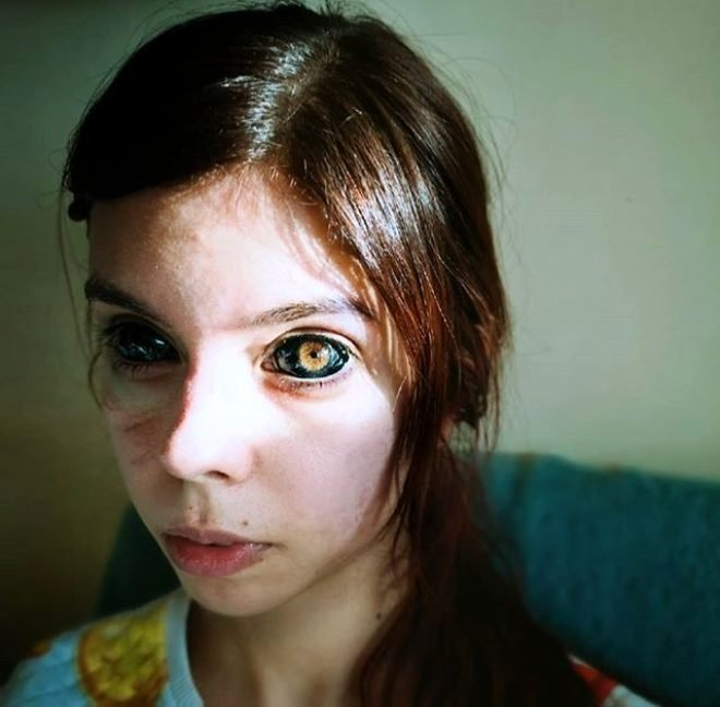 Genç kız rapçiye özendi gözlerini siyaha boyadı! Kör oldu