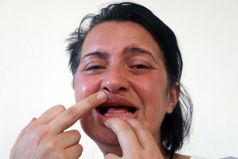 Dişlerini beyazlatmak istedi, başına gelmeyen kalmadı!