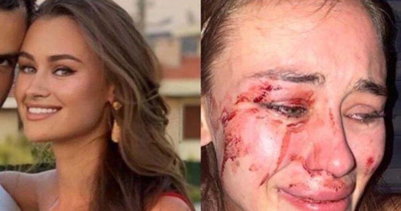 Dünyaca ünlü model Daria Kyryliuk Çeşme'de saldırıya uğradı