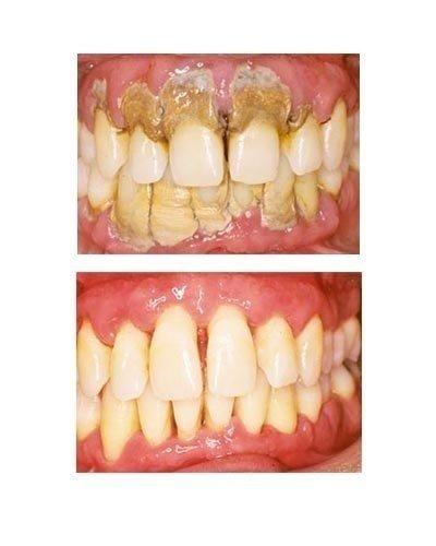 Diş taşlarınızı doğal yöntemlerle yok edin!