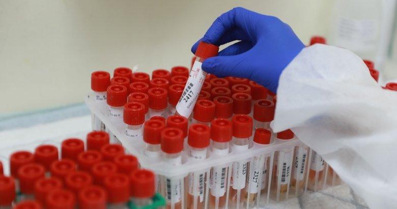 Oxford Üniversitesi'den dikkat çeken çalışma: Koronavirüse yakalananlar...