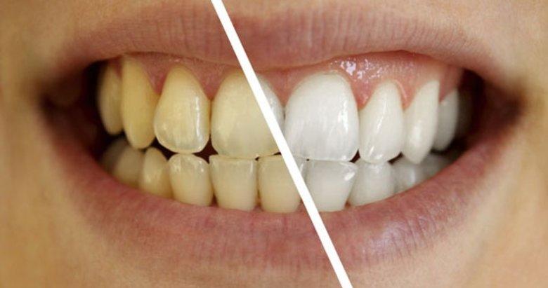 20 dakikada doğal yöntemlerle dişlerinizi bembeyaz yapabilirsiniz