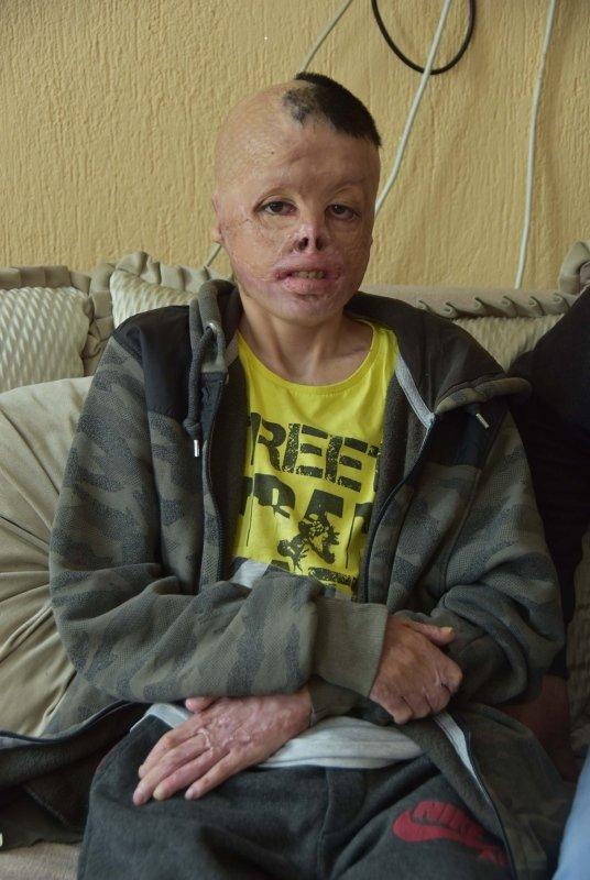 Yangına su yerine tiner dökmüştü! 13 yaşındaki Kadir hayatını geri istiyor...
