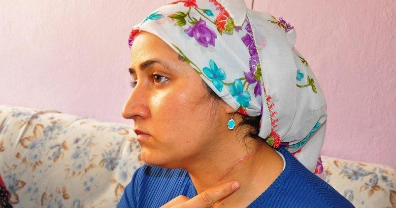 Eşi tarafından boğazı kesilen Esra Oymak: Herkesten korkmaya başladım