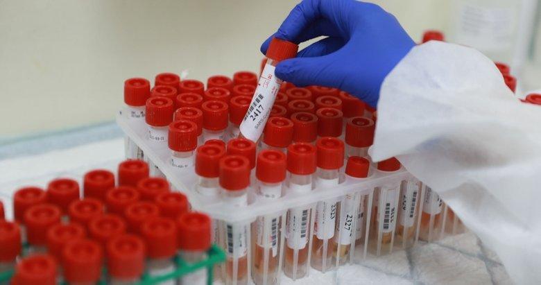 Dünya genelinde koronavirüs bilançosu!