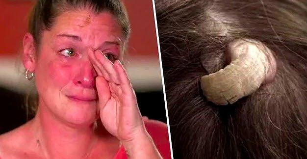 Kafasından boynuz çıkan kadın tıp dünyasını şoke etti (Dünyanın en ilginç hastalıkları)