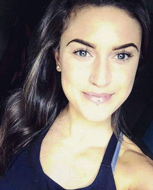 Emelle Lewis anoreksiya hastası olmuştu, son hali görenleri şaşırttı!