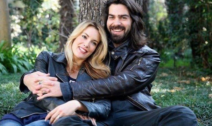 Afili Aşk'ın Ayşe'si Burcu Özberk estetiksiz hali ile sosyal medyayı salladı!
