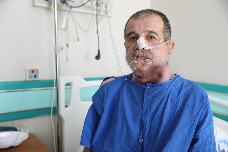Kütahya'da kanser hastasına bacak kemiğinden yeni çene! İşte dünyanın en ilginç hastalıkları...