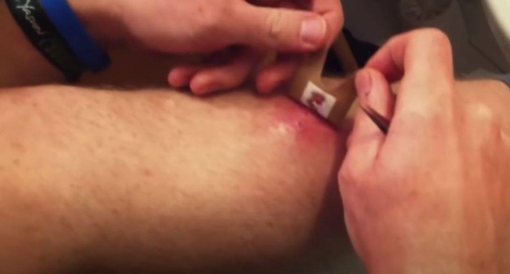 Bacağındaki yara dehşete düşürdü! Hep kanıyordu içinden bakın ne çıktı