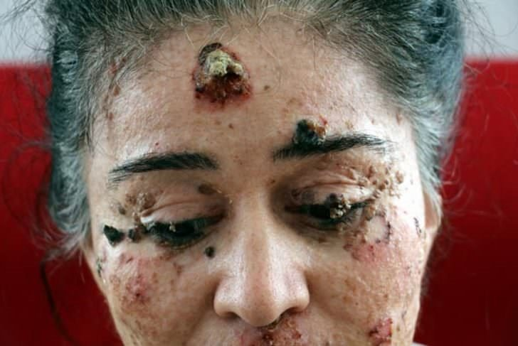 Güneşin erittiği kadın organlarını bir bir kaybediyor