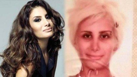 Doğduğun Ev Kaderindir'in Zeynep'i Demet Özdemir estetiksiz halini görenler tanıyamadı