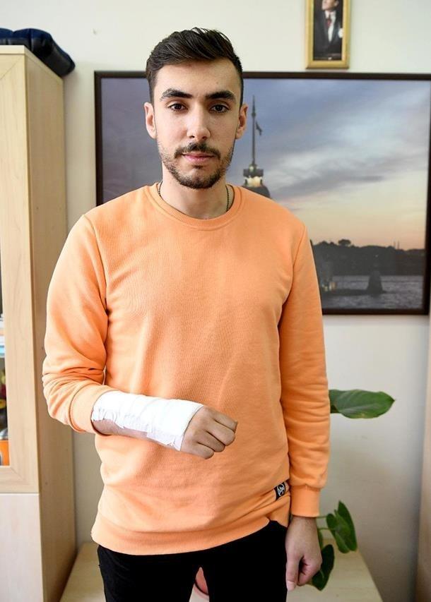 el bilegi tumor protezi gelistirildi