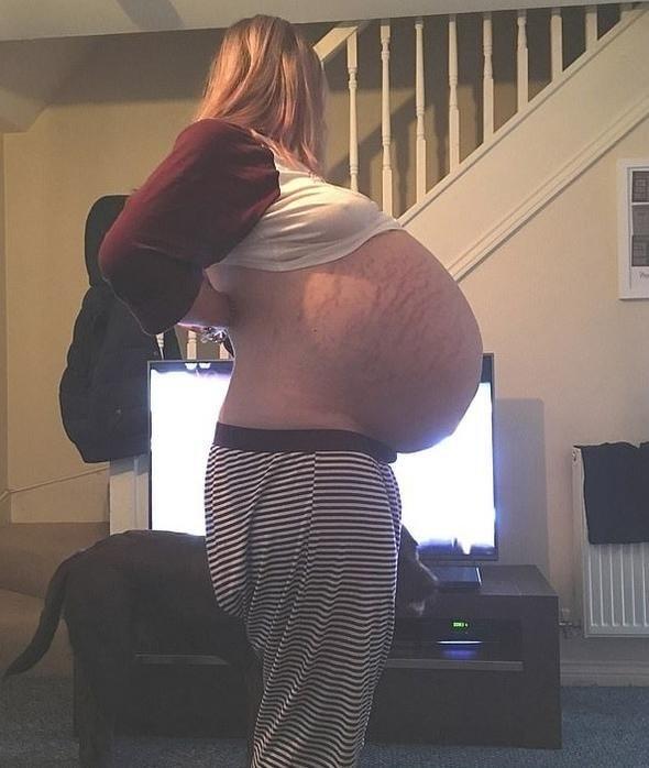 Doktorlar bile hamile sandı! Çıkanlara kimse inanamadı...