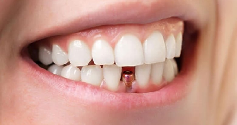Diş implantları ile özgürce gülümseyin