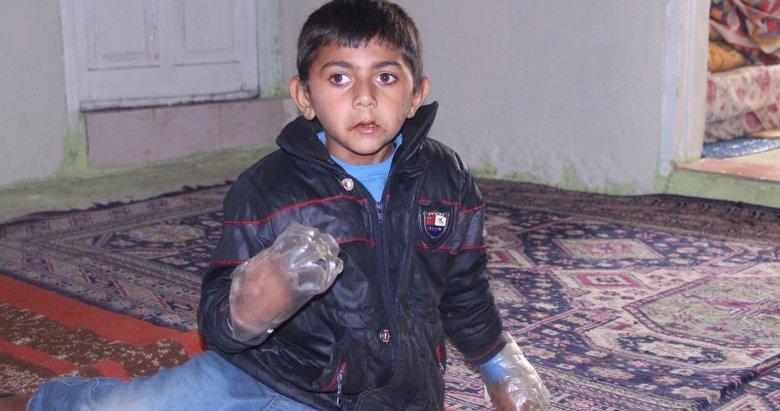 Durduramadılar! Ailesi Minik Yusuf'un ellerini plastik şişeye bağlıyor