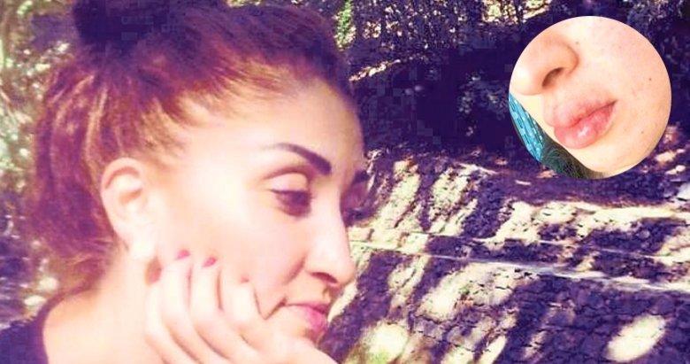 İzmir'de 'dolgu dudak' alarmı