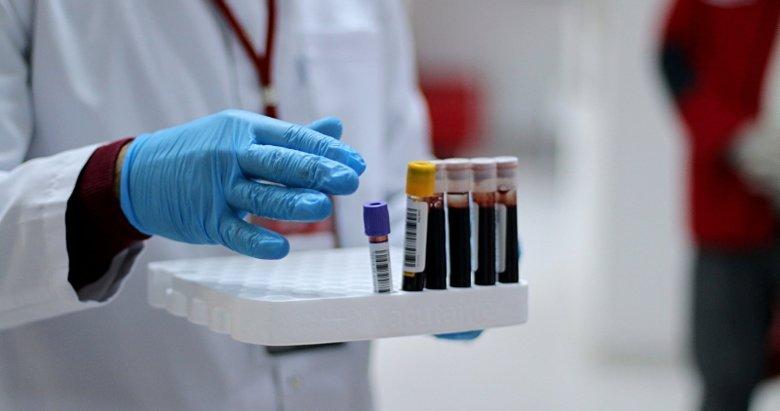 Koronavirüs ve kan grubu arasında bağlantı var mı? Bilim Kurulu üyesi açıkladı