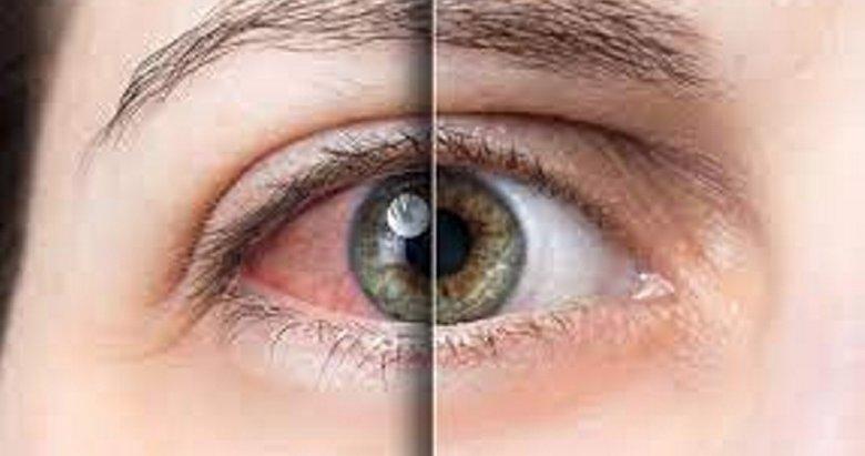 Uzmanından önemli uyarı: Göz ağrısını hafife almayın!