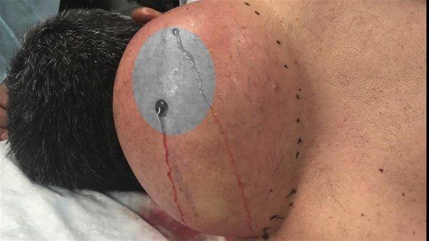 Boynunda kist olan hastayı böyle ameliyat etti